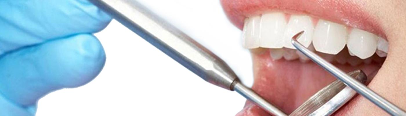Elenco degli Igienisti Dentali
